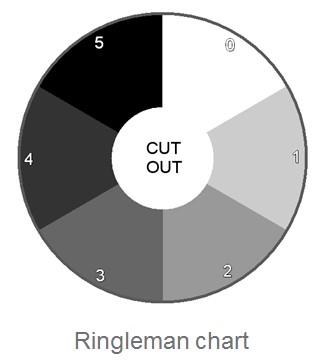 Ringleman Chart